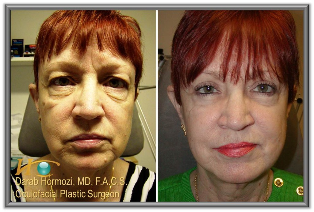 Facelift-Before-After-Hormozi-Baltimore-MD-1024x692.jpg