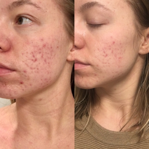 Before and After First Dermaplaning Facial
