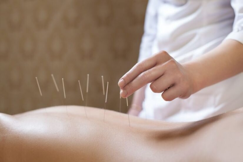 Acupunture - click here