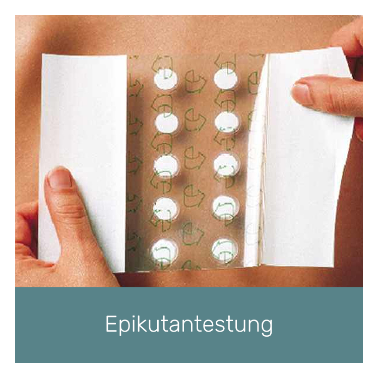 novamderm-epikutantestung.png