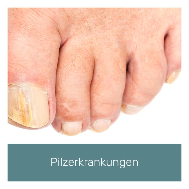 novaderm-pilzerkrankungen.png