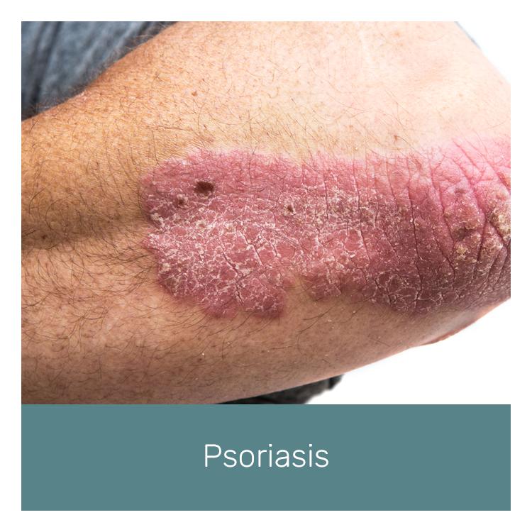 novaderm-psoriasis.png