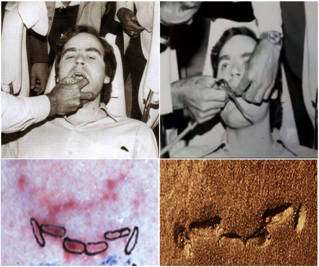 Making the mold of Bundy's teeth and the comparison to the bite mark