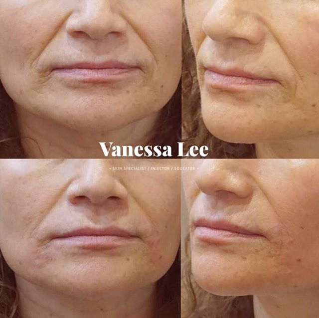 "This client used to unconsciously rest her face in a frowning position. She also smiled in a downward pull. Her concentration face also involved frowning. So naturally over years the skin around the corners of her mouth became worn down and deep lines started to set in.⠀ ⠀ Her major complaint was that she didn't want to look mad or sad. First, I injected the muscles that pull the sides of the mouth down with some neuromodulator to help prevent further progressing of the downwards turn. Next, I added dermal filler into the folds in a linear technique, into the fine lines superficially by serial puncture, and also creating ""scaffolding"" to support the tissue to create support.⠀ ⠀ She previously had filler done here where the provider ended up placing too much filler at the corners of the mouth and it resulted in her having small pouches where the filler was placed. ⠀ ⠀ She is thrilled with her results mainly because she looks natural and smoother."