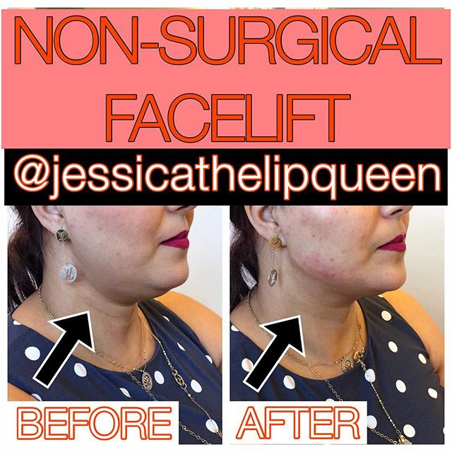 Jawline from today!  #slayallday!  Each one is SO SATISFYING!  Look at that new neck! This was achieved with 4 syringes of Radiesse #😝😝😝 #liquidfacelift #radiesse #radiessejawline #cheeks #chin #jaw #nonsurgicalfacelift #cantstopwontstop #💪🏻