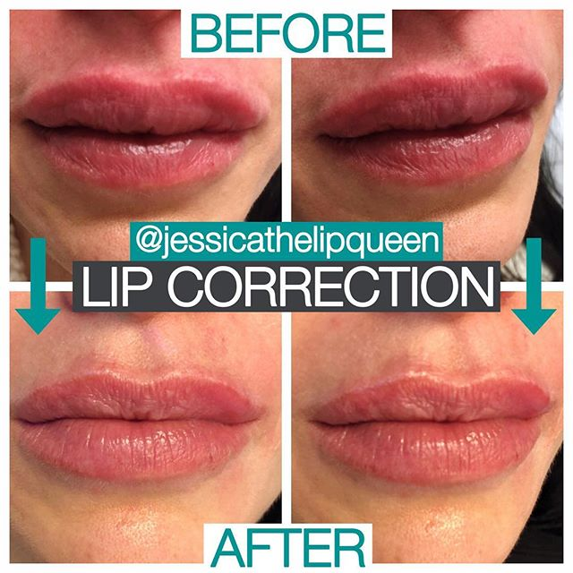 """Another LIP CORRECTION 🙄... so another rant. I probably have about 10 patients that I am currently in the process of fixing by dissolving little by little then building them back up again.  As much as doing corrections is super frustrating for me, I really do love how happy my patients are in the end.  I always get asked who the culprits are for these """"botched"""" jobs.  As much as I'll never tell, I will say this.  These botched jobs are either done by an injector with little to no experience, or by someone who is super clueless, who thinks they are SO great and really have no idea how BAD they are.  It's really hard watching it continually happen, and as the demand keeps going up for injectables so will complications like these.  I get a lot of slack in the aesthetics world because I am not an MD.  I am not taken as seriously as an injector, and I am often glossed over.  But I think there is something to be said for someone who is """"just"""" a PA, who is now fully booked until June, fixing all of this CRAP that is out there.  I urge patients to please do your research and injectors you HAVE TO DO BETTER!  #willthemadnessend #knowyourinjector #doyourresearch #enoughisenough #juvederm #lipfiller #lipcorrection"""