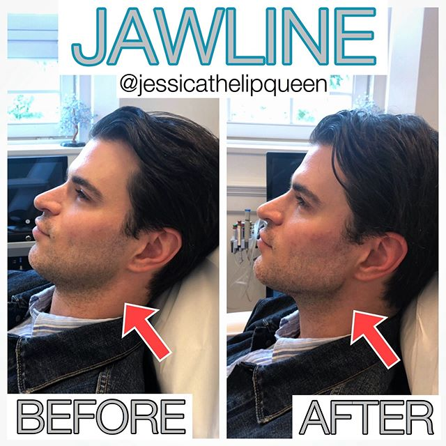 Jawline DREAMS!!!! It is always fun having a Scottish Lord around 🥰🥰🥰. We used 4 syringes of Radiesse here and 1 syringe of Voluma to balance out his jawline and make it more masculine.  It came out so great and I love it!  Let me know what you think!  I love all the comments from my followers!  Keep them coming!!! #jawlinefiller #jawline #radiessejaw #radiesse #voluma
