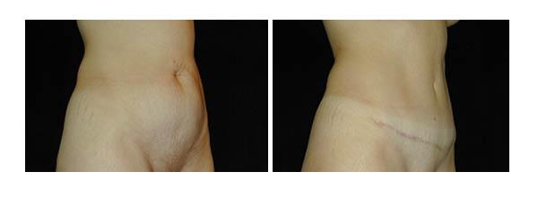 abdominoplasty03.jpg