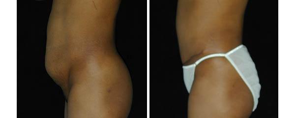 abdominoplasty08.jpg
