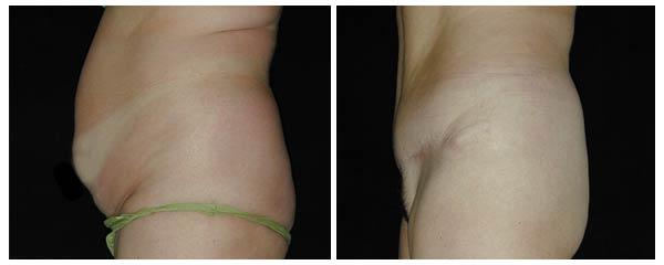 abdominoplasty11.jpg
