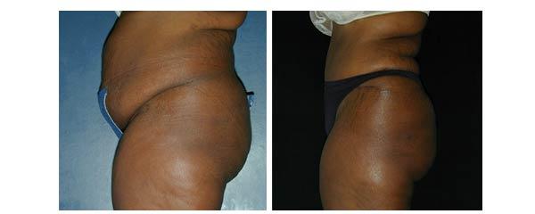 abdominoplasty13.jpg