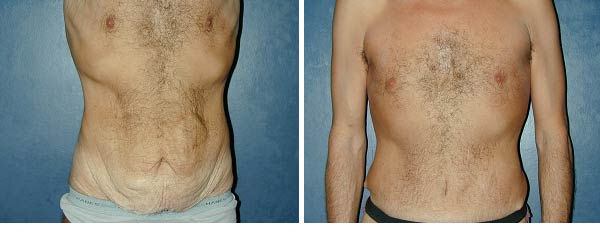 abdominoplasty14.jpg