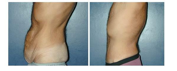abdominoplasty15.jpg