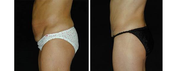 abdominoplasty16.jpg
