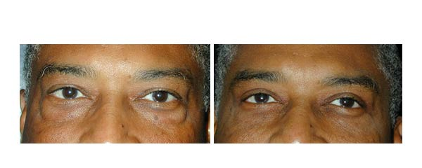blepharoplasty03.jpg