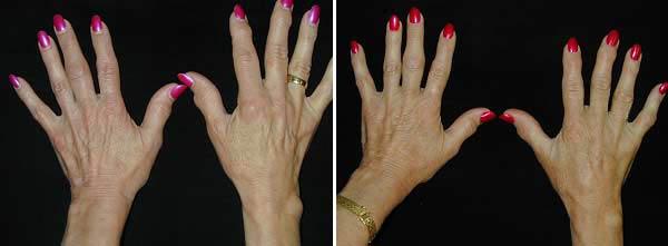hands02.jpg