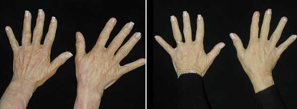 hands01.jpg