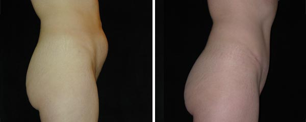 abdominoplasty17.jpg