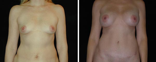 abdominoplasty19.jpg