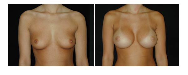 breastaugmentation01.jpg