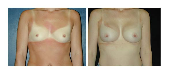 breastaugmentation02.jpg