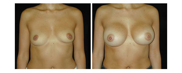 breastaugmentation03.jpg