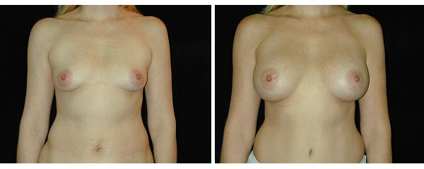 breastaugmentation05.jpg