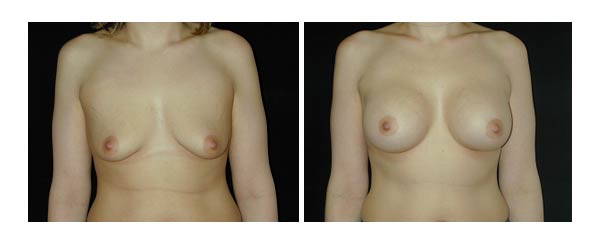 breastaugmentation06.jpg
