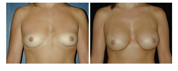 breastaugmentation08.jpg