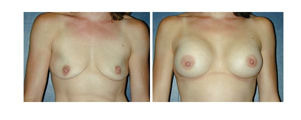 breastaugmentation09.jpg