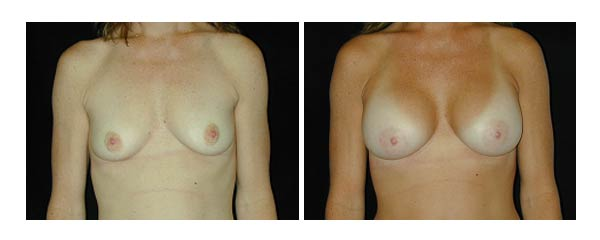 breastaugmentation15.jpg