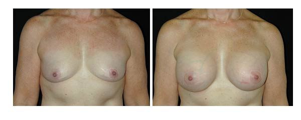 breastaugmentation16.jpg
