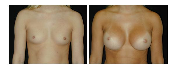 breastaugmentation17.jpg