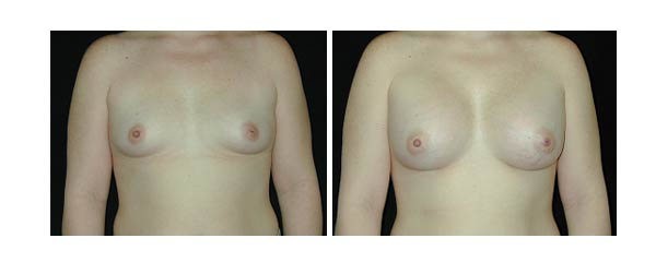 breastaugmentation21.jpg