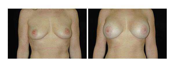 breastaugmentation22.jpg