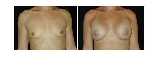 breastaugmentation25.jpg