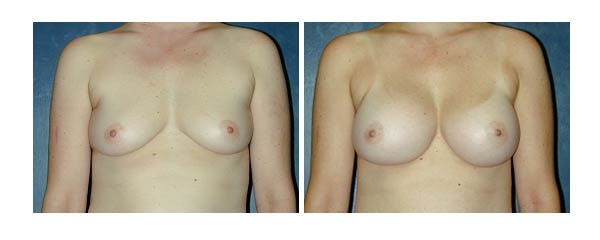 breastaugmentation26.jpg