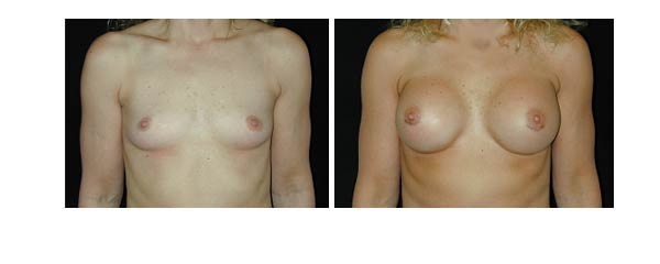 breastaugmentation27.jpg