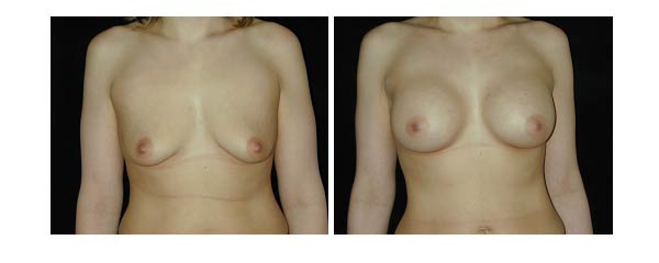 breastaugmentation30.jpg