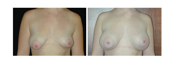 breastaugmentation32.jpg
