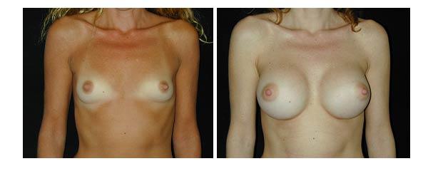 breastaugmentation35.jpg