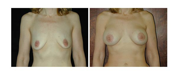 breastaugmentation36.jpg