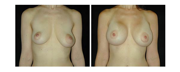 breastaugmentation37.jpg