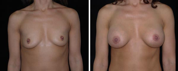breastaugmentation40.jpg