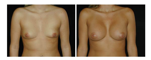 breastaugmentation04.jpg
