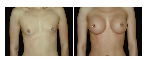 breastaugmentation07.jpg