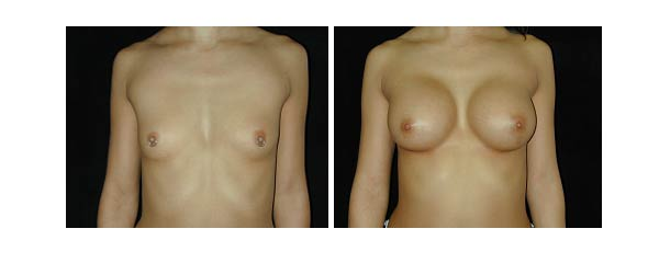 breastaugmentation10.jpg