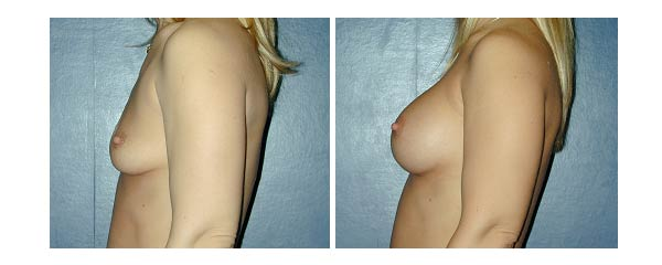breastaugmentation11.jpg