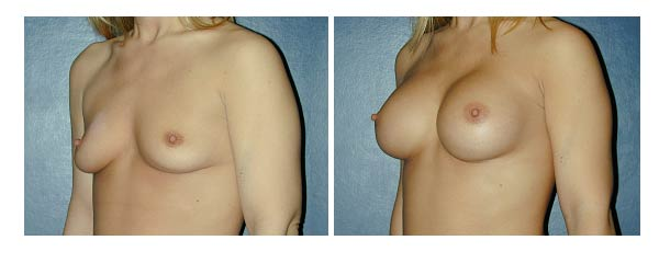 breastaugmentation12.jpg