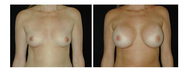 breastaugmentation13.jpg